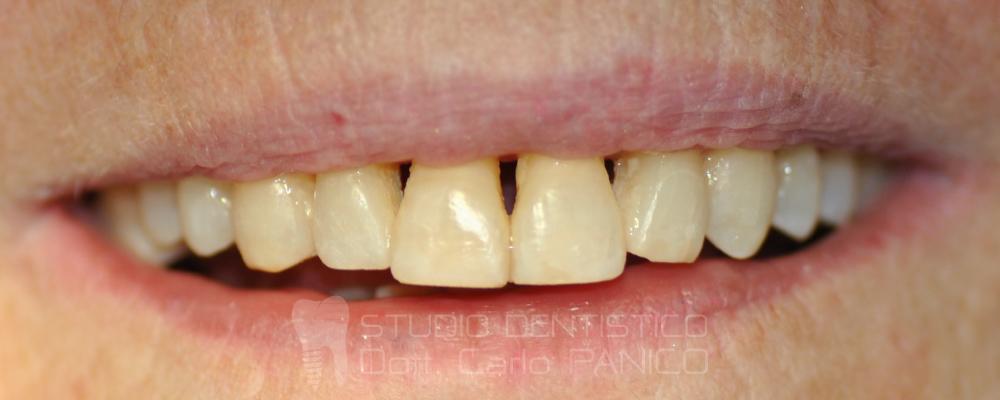 A gomma da masticare nikoretta distruzione di 4 mg