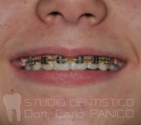 ortodonzia-bambino-acerra-fissa