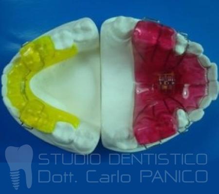 ortodonzia-bambino-acerra