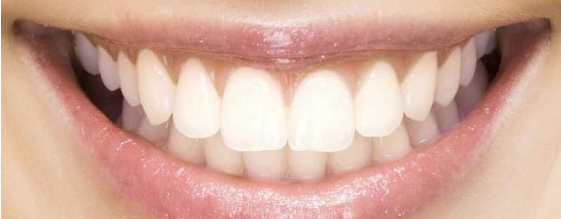 trattamento-ortodontico-adulti