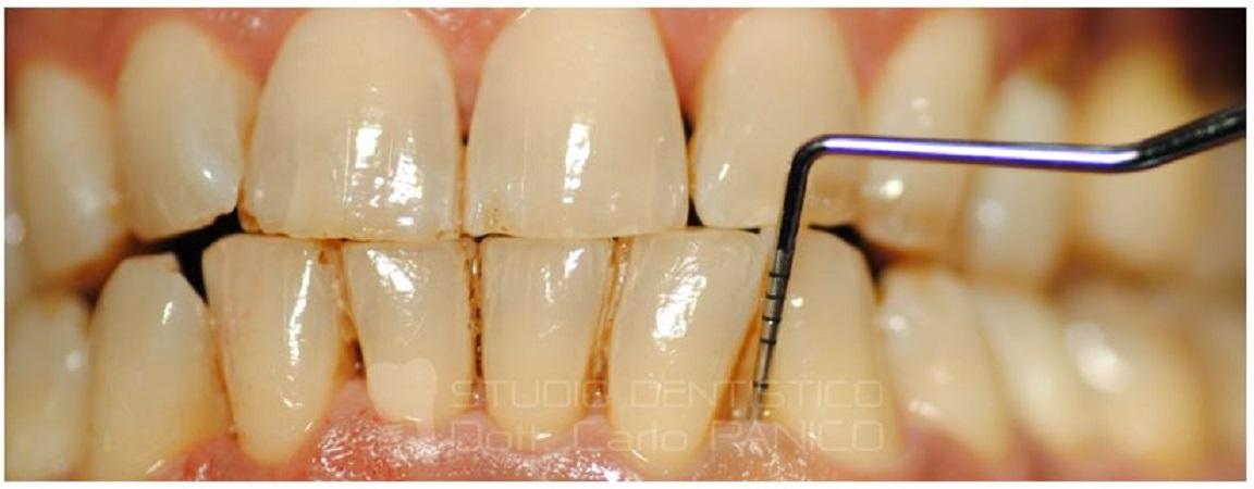 si può curare la parodontite?